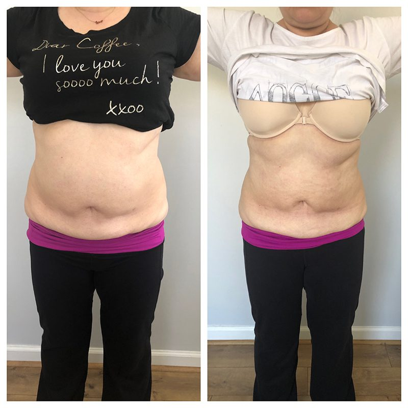 Renew Me Medspa Body Contouring before/after